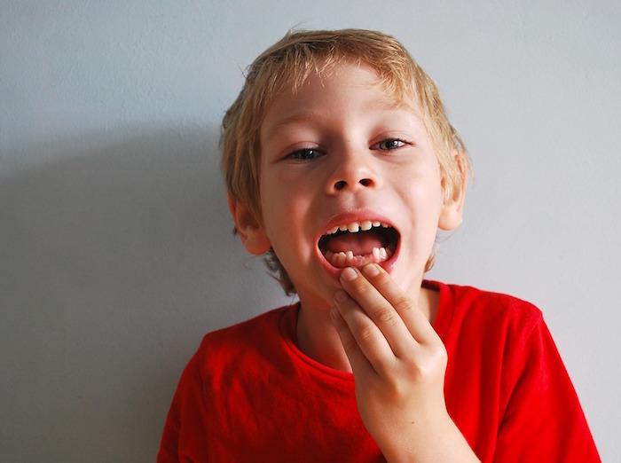 Zęby mleczne u chłopca